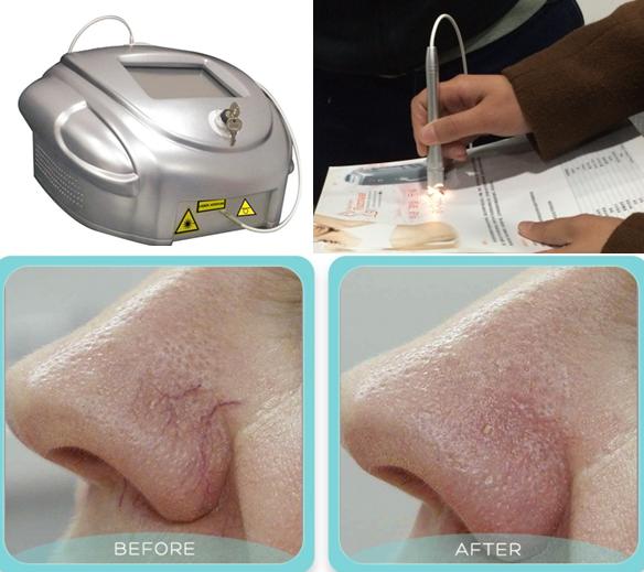diodo laser 980nm trattamenti capillari